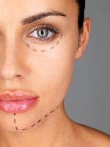 Face marked up for plastic surgery