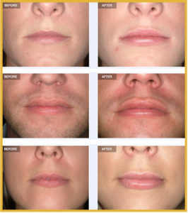 Lip implants on the rise | Aurora Clinics UK