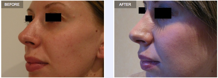 Rhinoplasty Profile Before and After