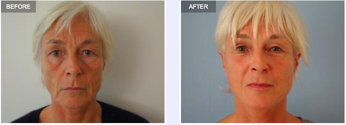 Aurora Clinics: Facelift Surgery, Surgeon Adrian Richards
