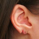 Aurora Clinics: Photo showing earring tear - repairable with Split Earlobe Repair