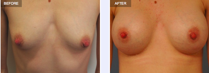 Tuberous breasts before and after corrective surgery