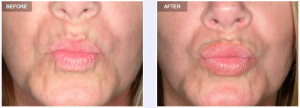 3 ways Permalip lip enhancement can make you look younger