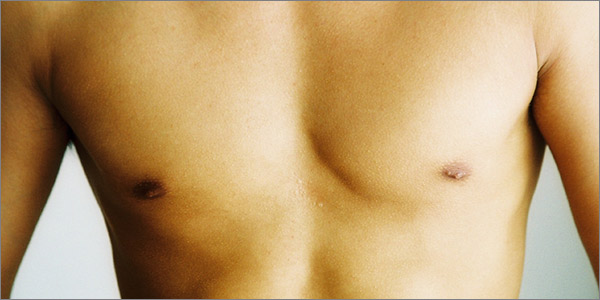 Aurora Clinics: Photo of Nipple Reduction Surgery