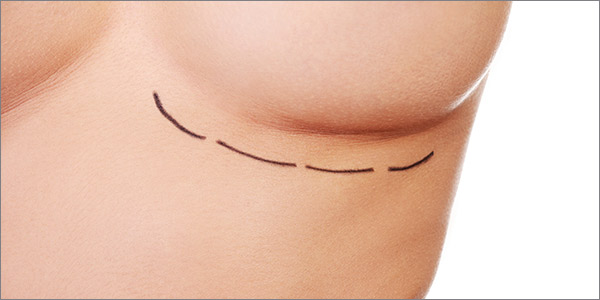 Aurora Clinics: Photo of OCEAN™ Breast Enlargement Surgery