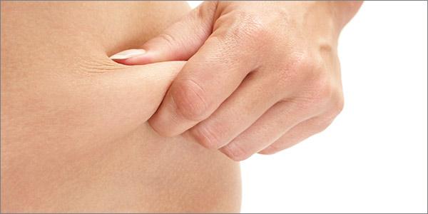 Aurora Clinics: Photo of Tummy Tuck Surgery (Abdominoplasty)