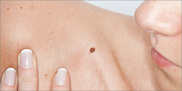 Aurora Clinics: Photo of Skin Tag, Cyst and Cosmetic Mole Removal