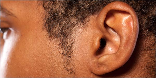 Aurora Clinics: Photo of Ear Pinning (Otoplasty) Surgery