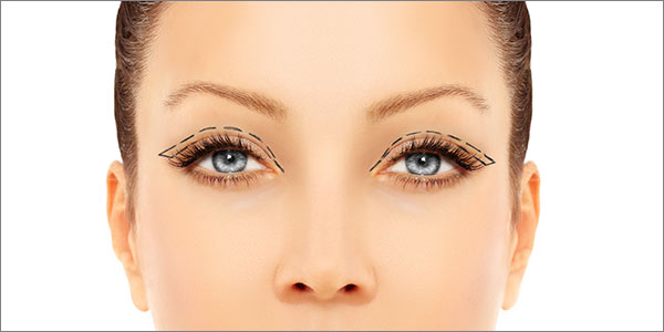 Aurora Clinics: Photo of Blepharoplasty Surgery