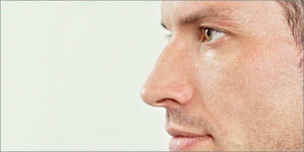 Aurora Clinics: Photo of Rhinoplasty Surgery