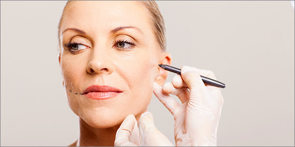 Aurora Clinics: Photo of Mini Facelift Surgery