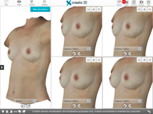 Aurora Clinics: Photo showing Crisalix 3D plastic surgery simulator